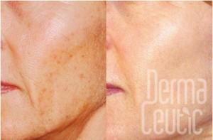 Cosmo Peel Dermaceutic Skin2