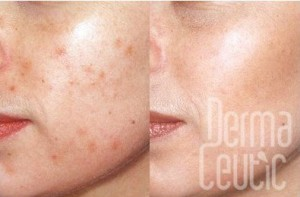 Milk Peel Dermaceutic Skin2
