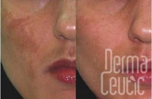 Spot Peel Dermaceutic Skin2