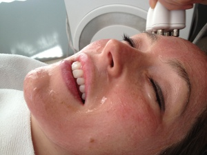 Venus Freeze Treatments